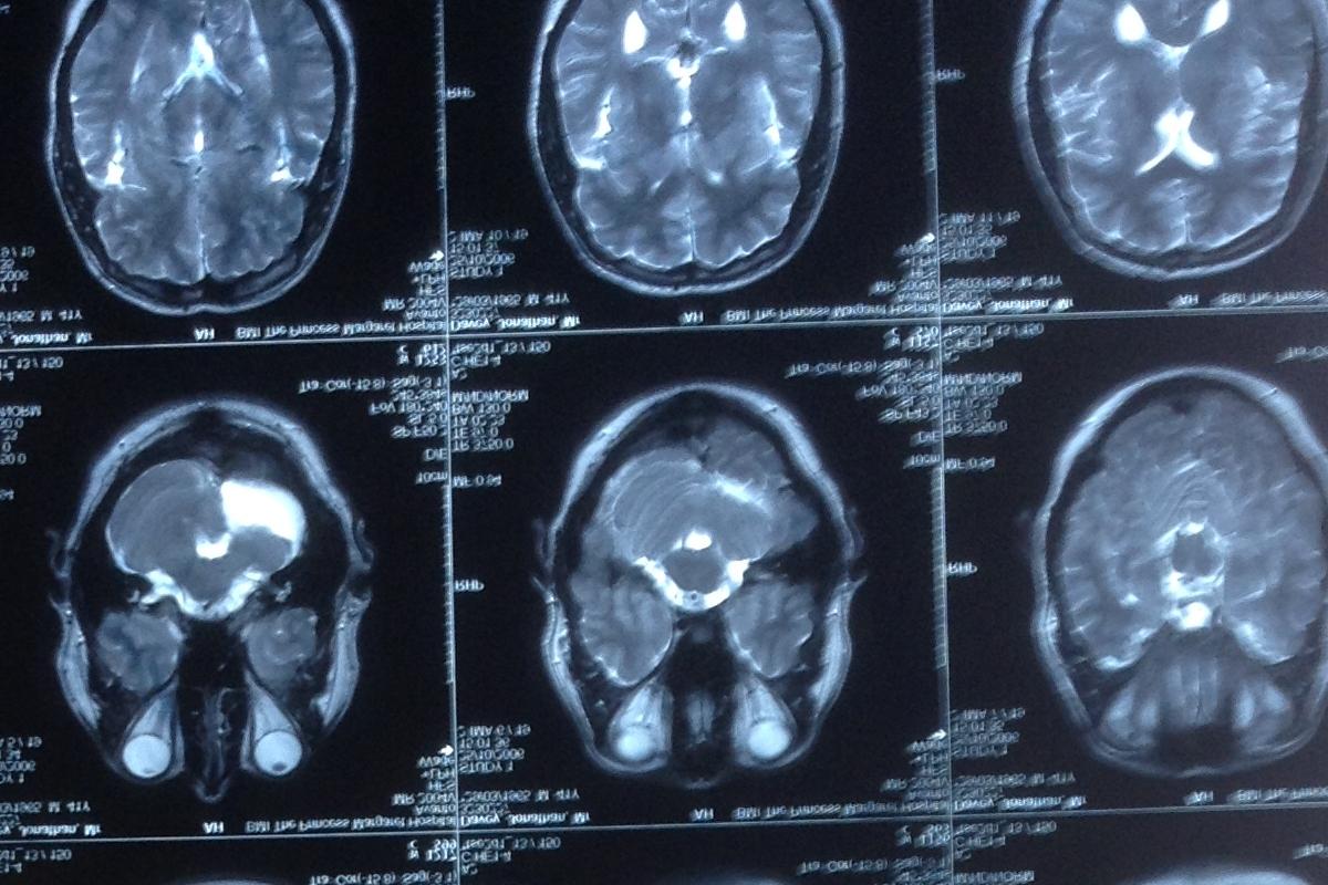 jons brain missing cerebellum